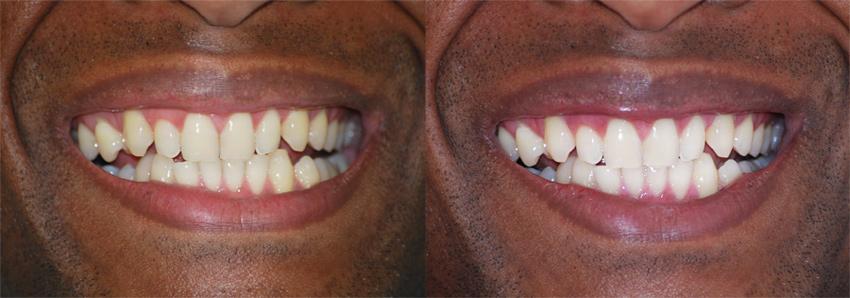 blanchiment des dents permanent